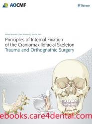 Principles of Internal Fixation (pdf)