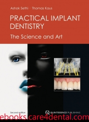 Practical Implant Dentistry: The Science and Art, 2E (pdf)