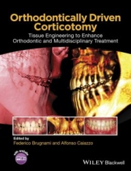 Orthodontically Driven Corticotomy: Tissue Engineering to Enhance Orthodontic and Multidisciplinary Treatment (pdf)