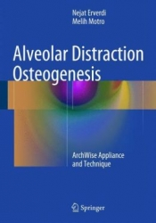 Alveolar Distraction Osteogenesis: ArchWise Appliance and Technique (pdf)
