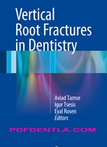Vertical Root Fractures in Dentistry (pdf)